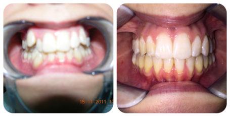 Prima e Dopo - Ortodonzia Invisalign - Poliambulatorio Medico Odontoiatrico Pamo srl presso Sotto il Monte Giovanni XXIII