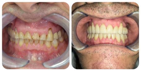 Prima e Dopo - bruxsismo - Ortodonzia Invisalign - Poliambulatorio Medico Odontoiatrico Pamo srl presso Sotto il Monte Giovanni XXIII