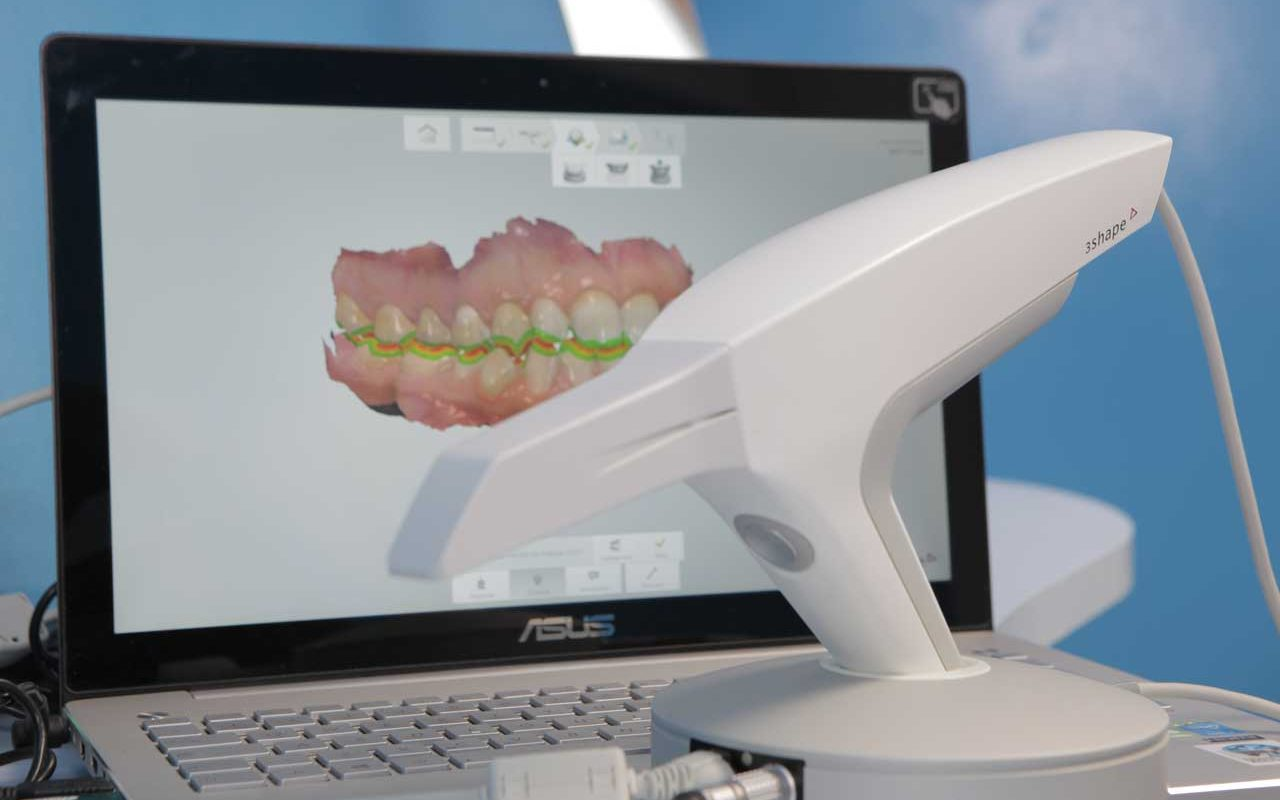 scanner intraorale - Poliambulatorio Medico Odontoiatrico Pamo srl presso Sotto il Monte Giovanni XXIII