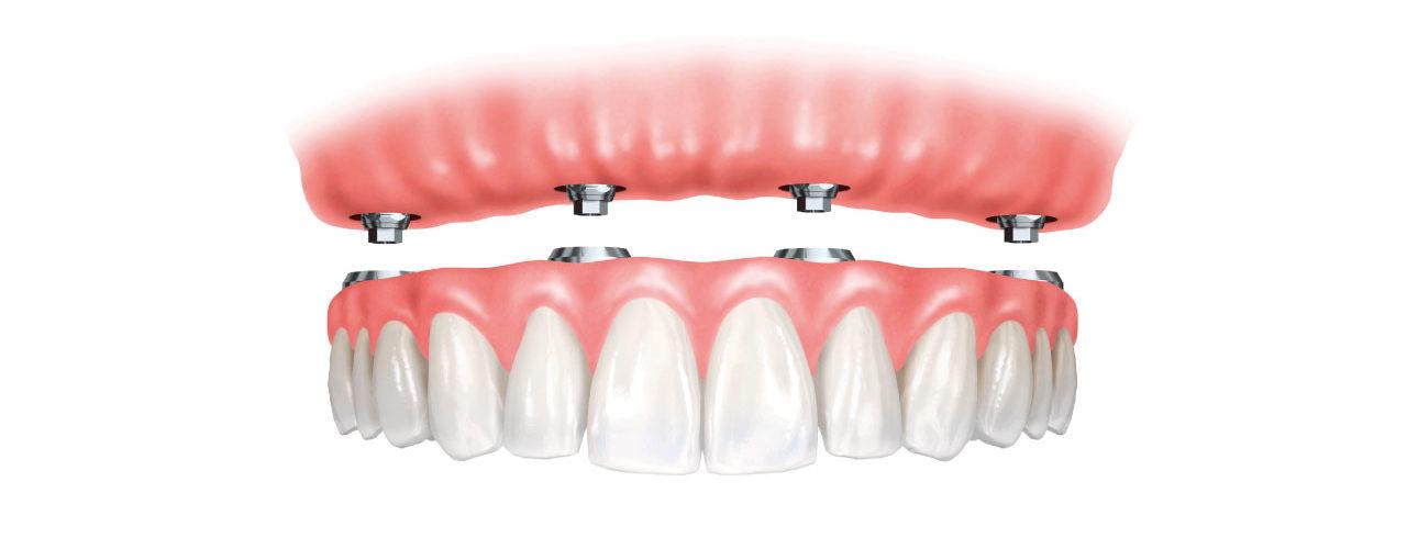 Impianto dentale - Impianto all on four - implantologia - Poliambulatorio Medico Odontoiatrico Pamo srl presso Sotto il Monte Giovanni XXIII