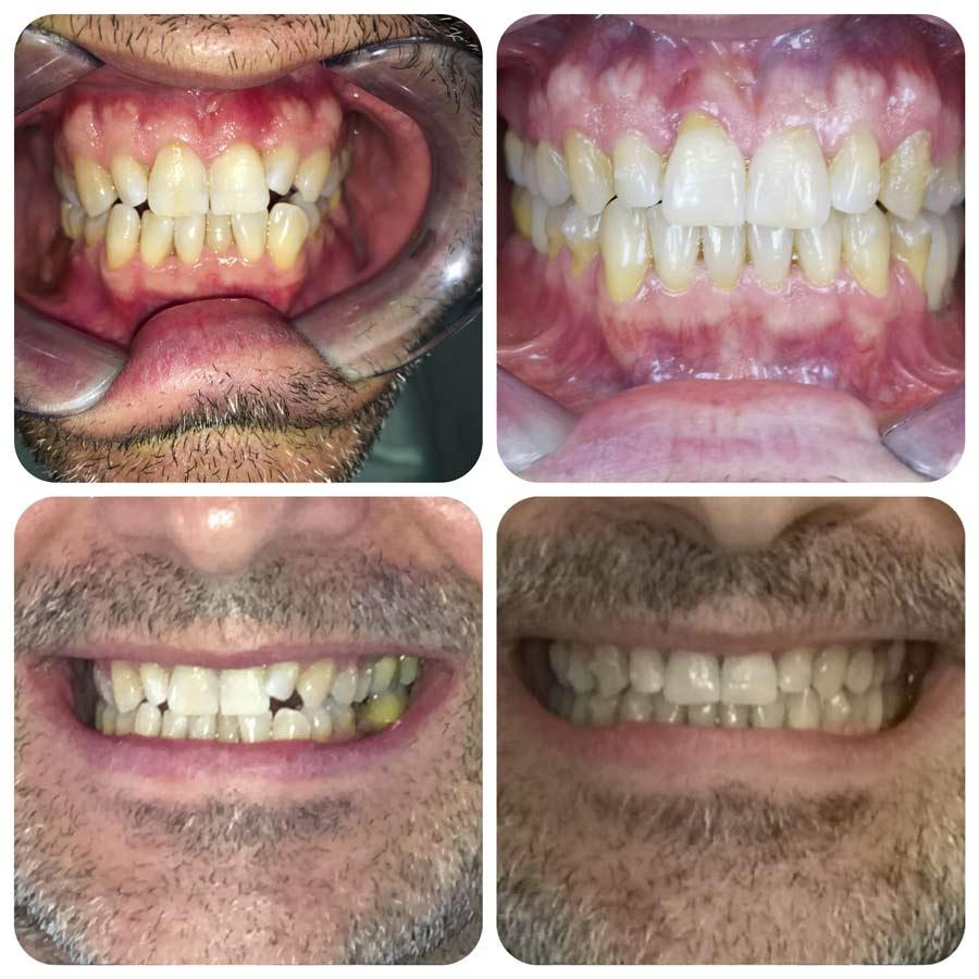 Prima e Dopo - parodonatite - parodontopatia - Poliambulatorio Medico Odontoiatrico Pamo srl presso Sotto il Monte Giovanni XXIII