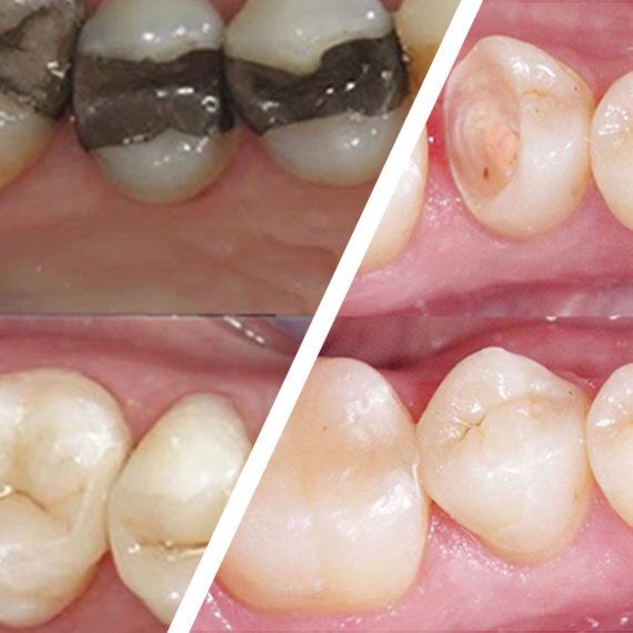 ortodonzia conservativa - Poliambulatorio Medico Odontoiatrico Pamo srl presso Sotto il Monte Giovanni XXIII