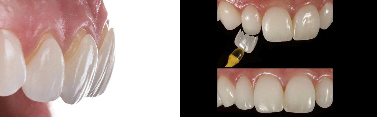 Faccette - Dentista Poliambulatorio Medico Odontoiatrico Pamo srl presso Sotto il Monte Giovanni XXIII