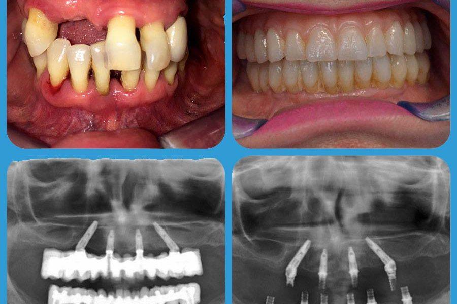 Impianto dentale | all on four - Impianto dentale all on six - impianto dentale - Implantologia presso Poliambulatorio Medico Odontoiatrico Pamo srl a Sotto il Monte Giovanni XXIII