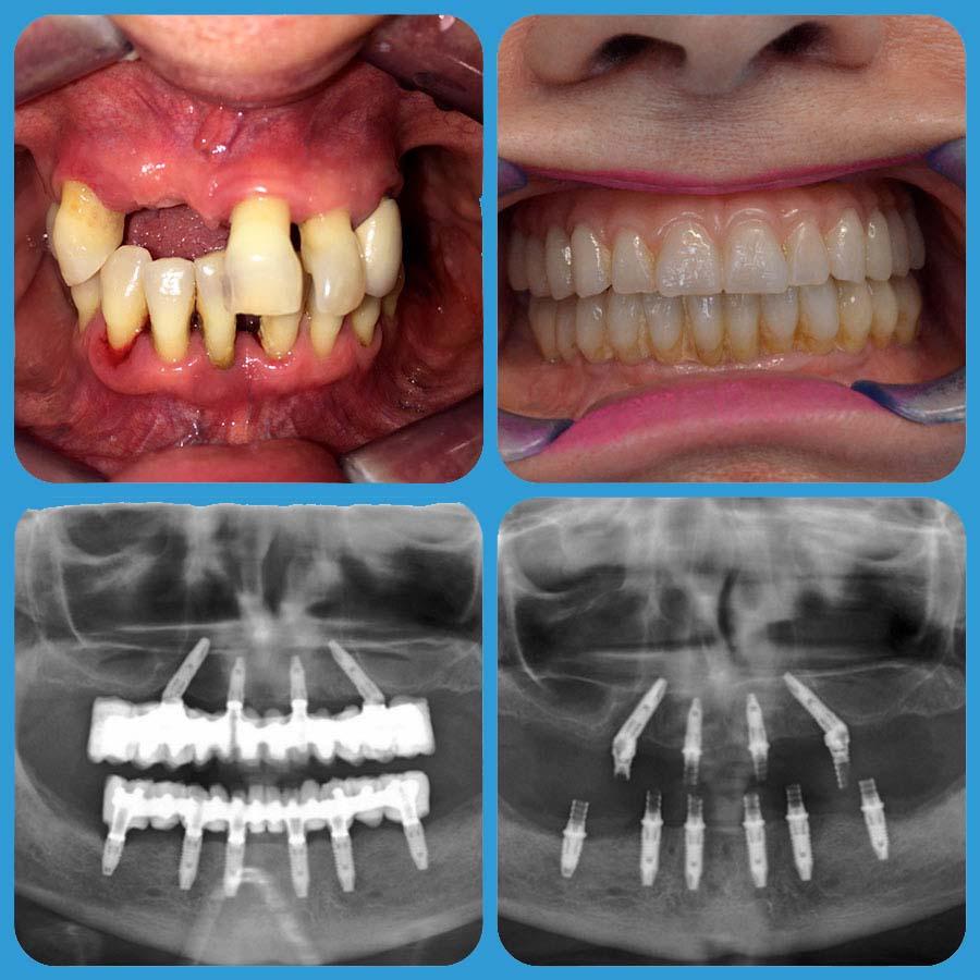 Impianto dentale   all on four - Impianto dentale all on six - impianto dentale - Implantologia presso Poliambulatorio Medico Odontoiatrico Pamo srl a Sotto il Monte Giovanni XXIII