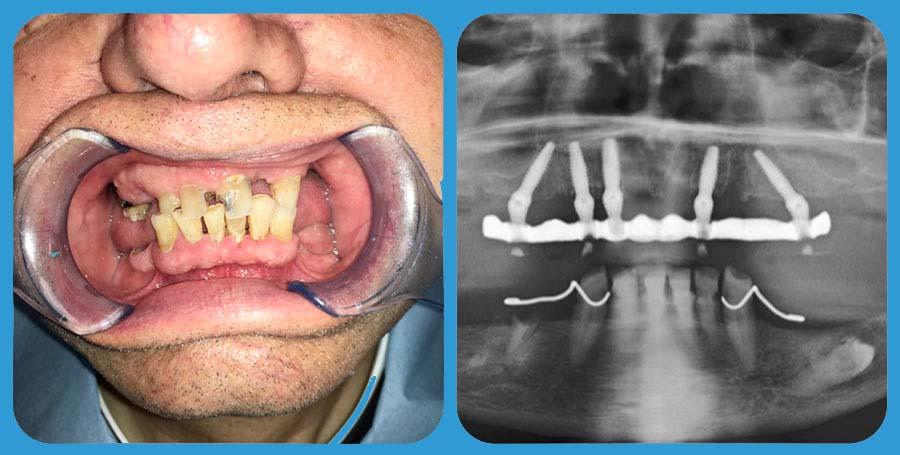 Prima e Dopo - impianto dentale - Implantologia presso Poliambulatorio Medico Odontoiatrico Pamo srl a Sotto il Monte Giovanni XXIII