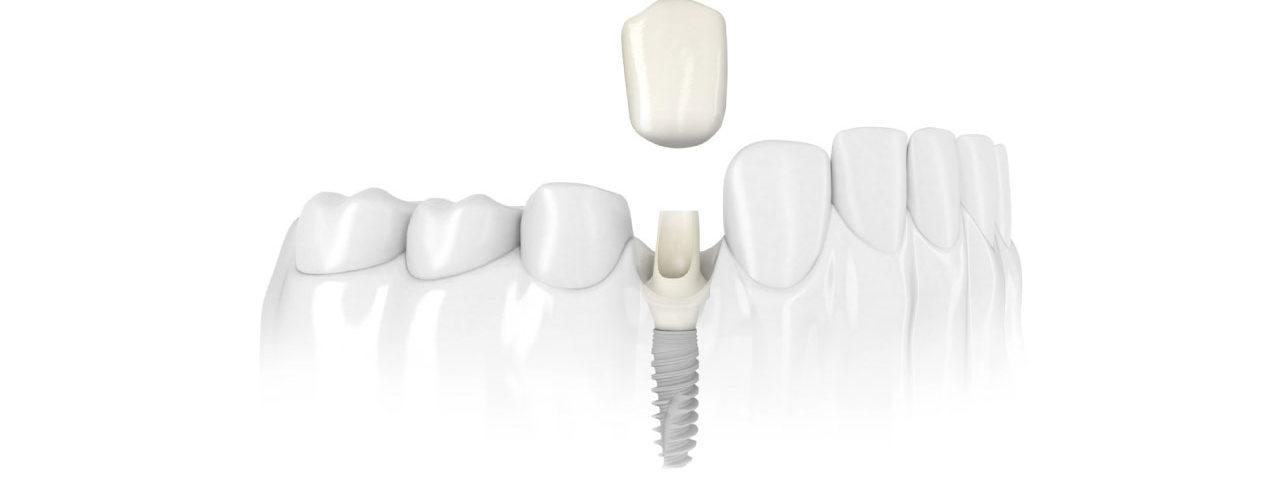 Impianto dentale - Impianto singolo - implantologia - Poliambulatorio Medico Odontoiatrico Pamo srl presso Sotto il Monte Giovanni XXIII