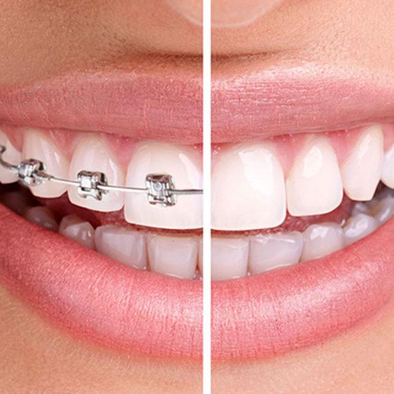 Ortodonzia Tradizionale - Poliambulatorio Medico Odontoiatrico Pamo srl presso Sotto il Monte Giovanni XXIII