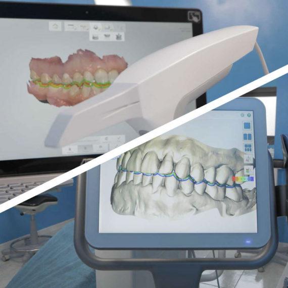 Impronta dentale digitale - Poliambulatorio Medico Odontoiatrico Pamo srl presso Sotto il Monte Giovanni XXIII